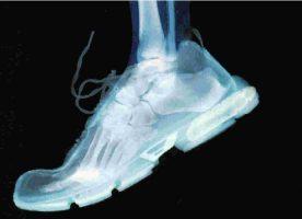 El cuidado de pies en los deportistas