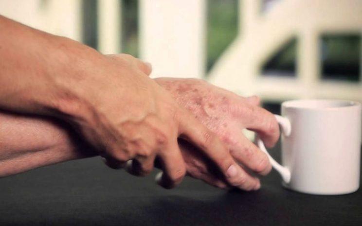 El Mal de Parkinson afecta principalmente a mayores de 60 años.